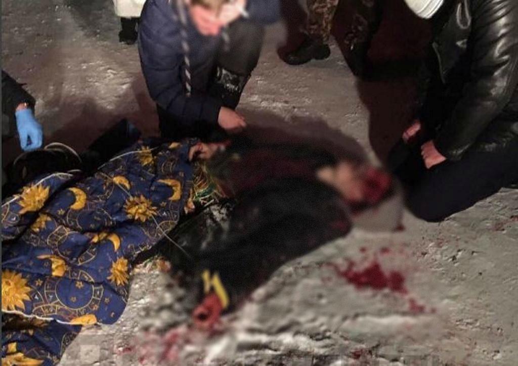 Вгороде Хабаровске мужчине вголову угодила петарда