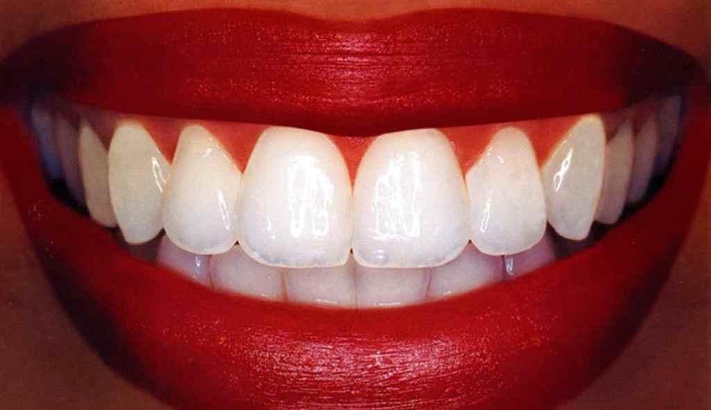 Ученые: утрата зубов взаимосвязана с длительностью жизни